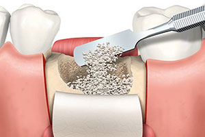 colorado-springs-bone-graft
