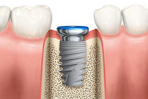 colorado-springs-dental-implants